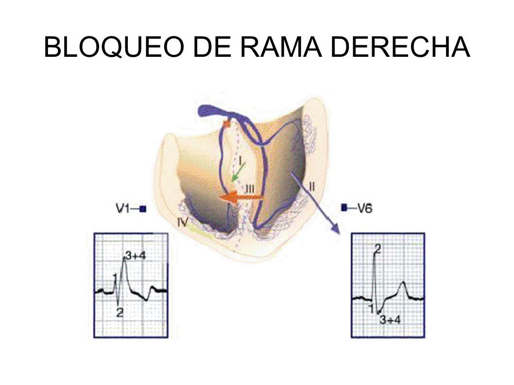 BLOQUEO DE RAMA DERECHA