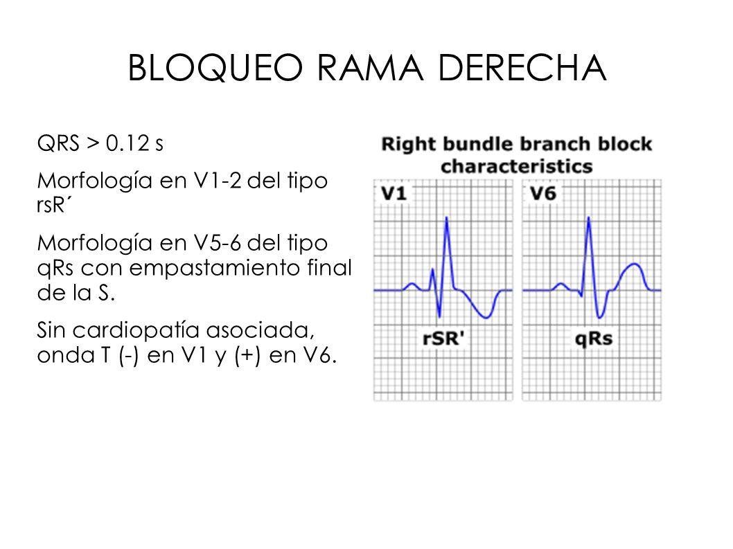 BLOQUEO RAMA DERECHA