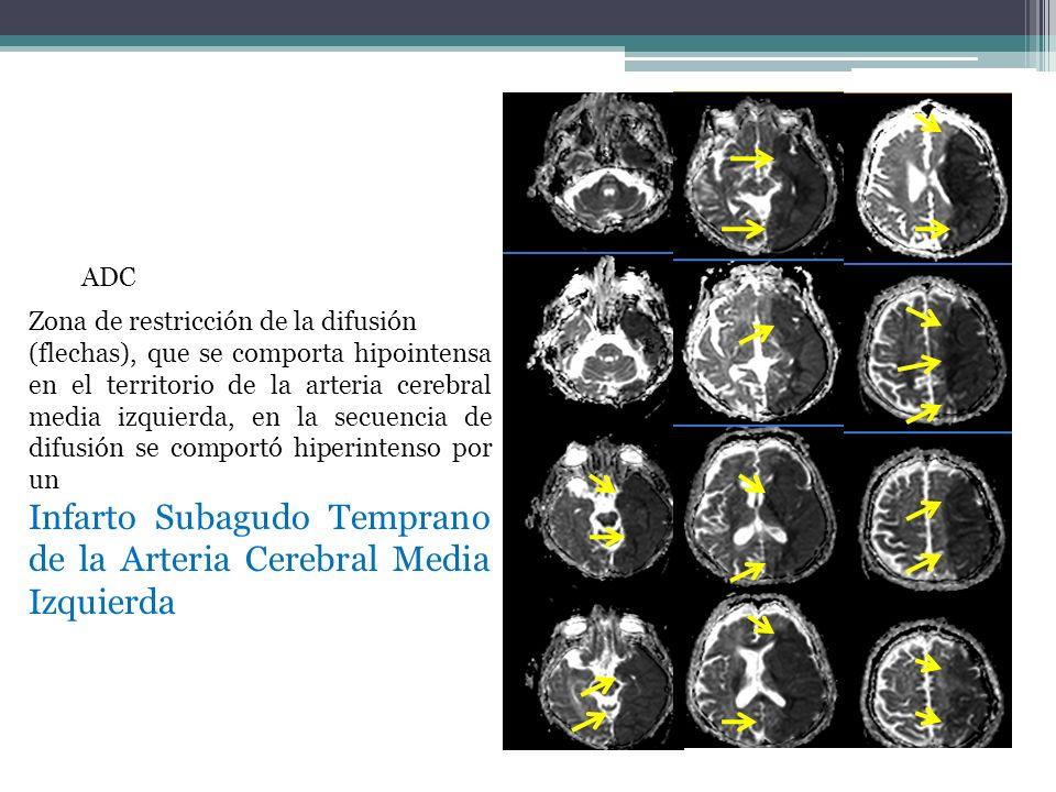 Infarto Subagudo Temprano de la Arteria Cerebral Media Izquierda