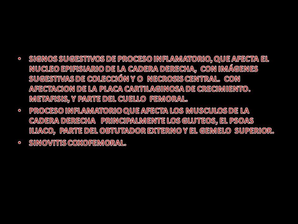 SIGNOS SUGESTIVOS DE PROCESO INFLAMATORIO, QUE AFECTA EL NUCLEO EPIFISIARIO DE LA CADERA DERECHA, CON IMÁGENES SUGESTIVAS DE COLECCIÓN Y O NECROSIS CENTRAL. CON AFECTACION DE LA PLACA CARTILAGINOSA DE CRECIMIENTO. METAFISIS, Y PARTE DEL CUELLO FEMORAL.