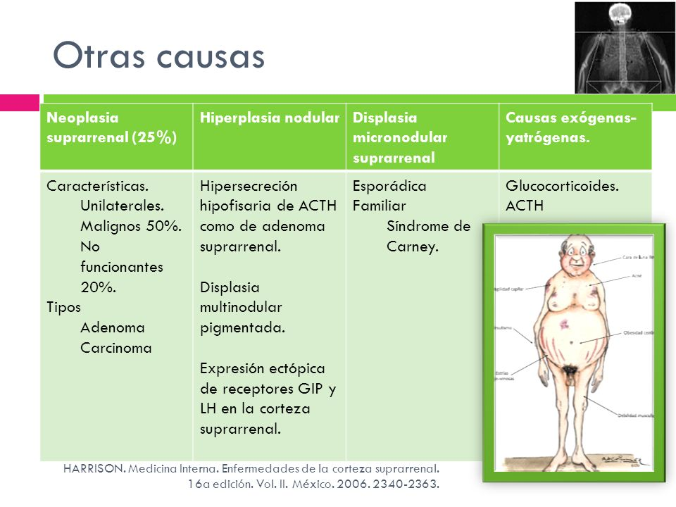 Otras causas Neoplasia suprarrenal (25%) Hiperplasia nodular