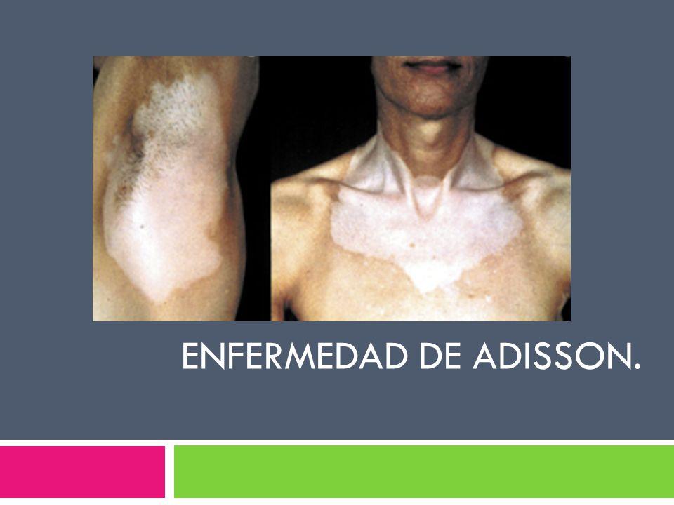 Enfermedad de adisson. Adrenalitis autoinmune asociada a vitiligo