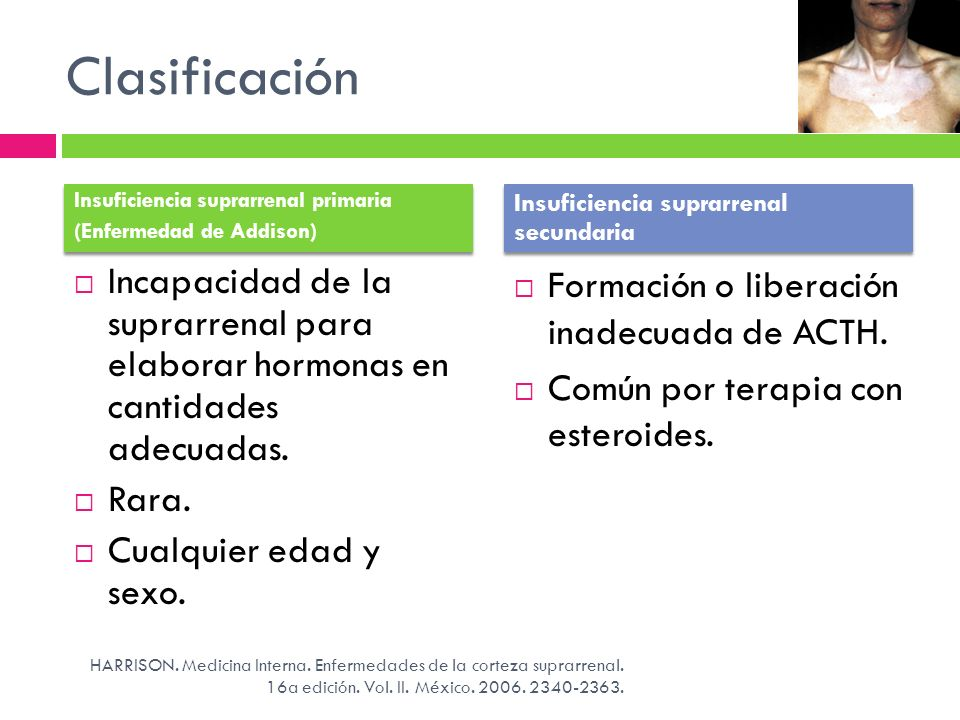 Clasificación Insuficiencia suprarrenal primaria. (Enfermedad de Addison) Insuficiencia suprarrenal secundaria.