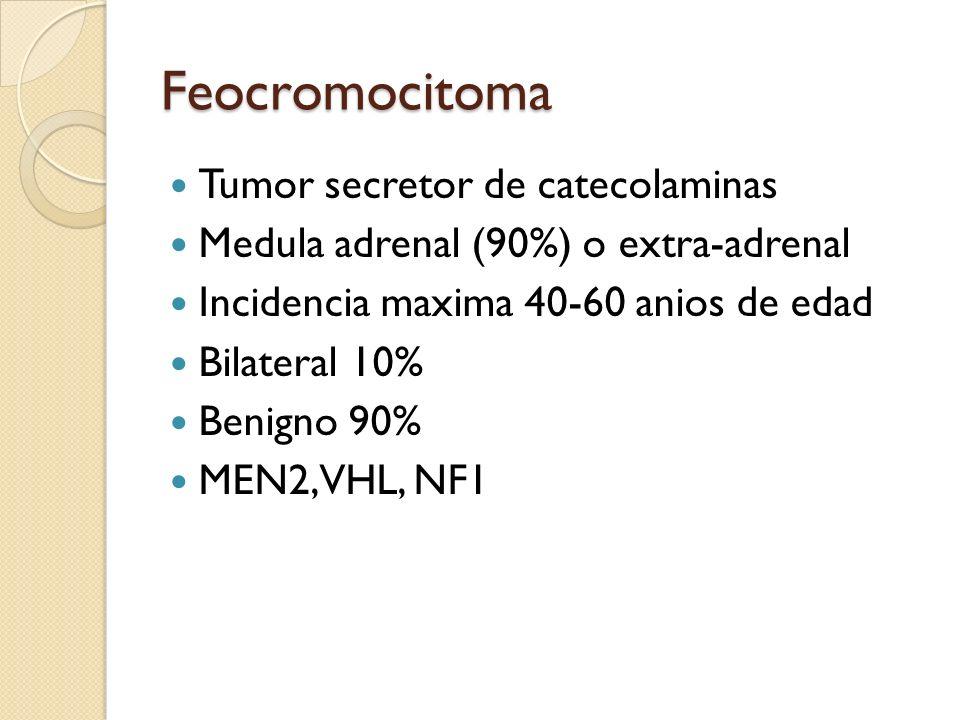 Feocromocitoma Tumor secretor de catecolaminas