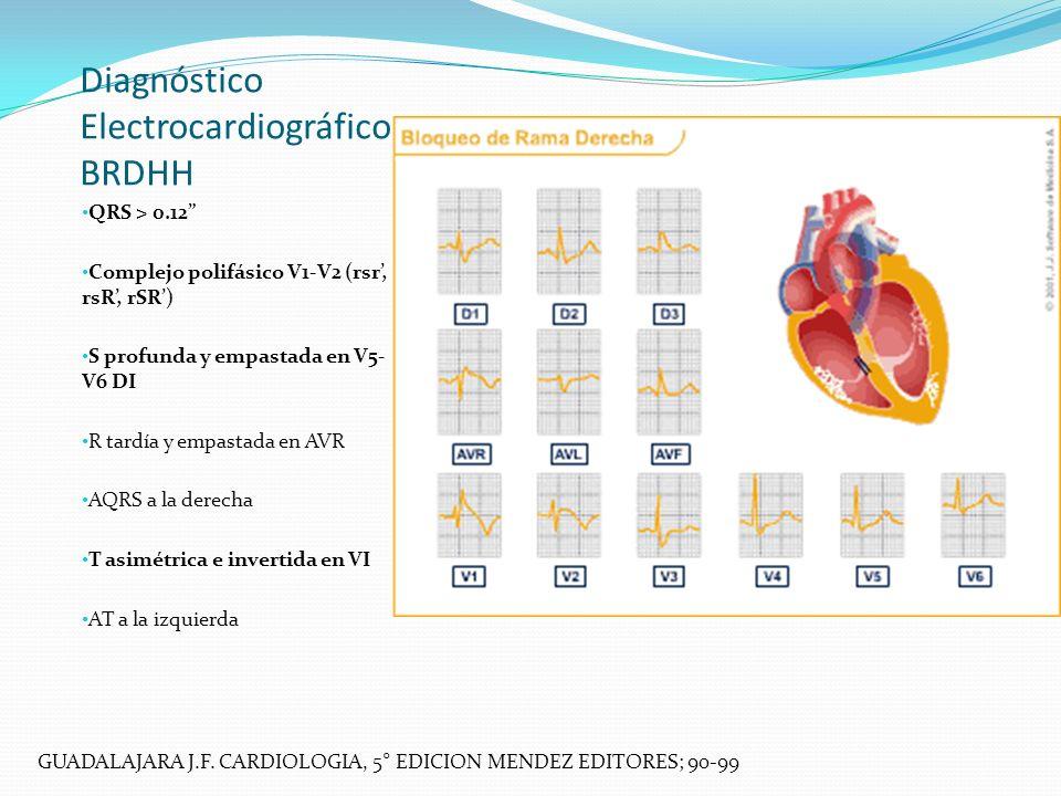 Diagnóstico Electrocardiográfico BRDHH