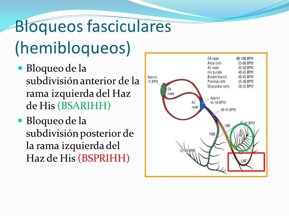 Bloqueos fasciculares (hemibloqueos)