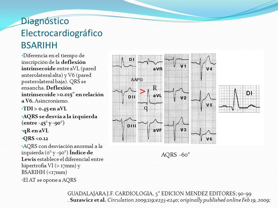 Diagnóstico Electrocardiográfico BSARIHH