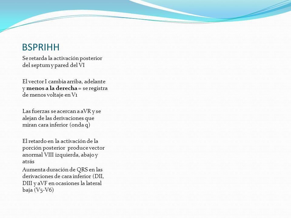 BSPRIHH Se retarda la activación posterior del septum y pared del VI