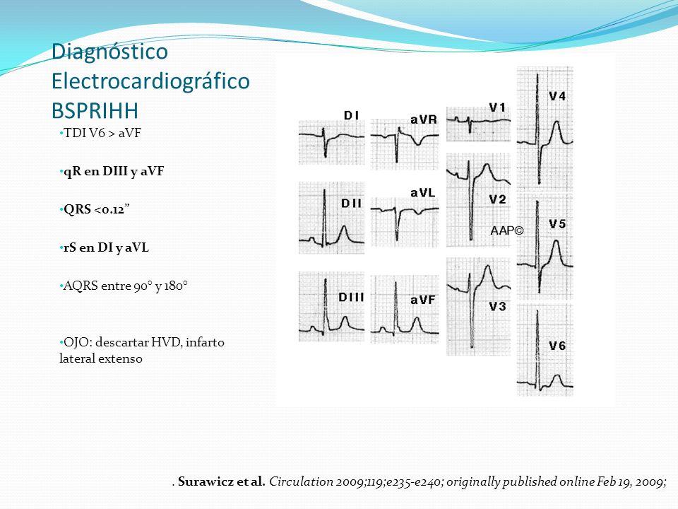 Diagnóstico Electrocardiográfico BSPRIHH
