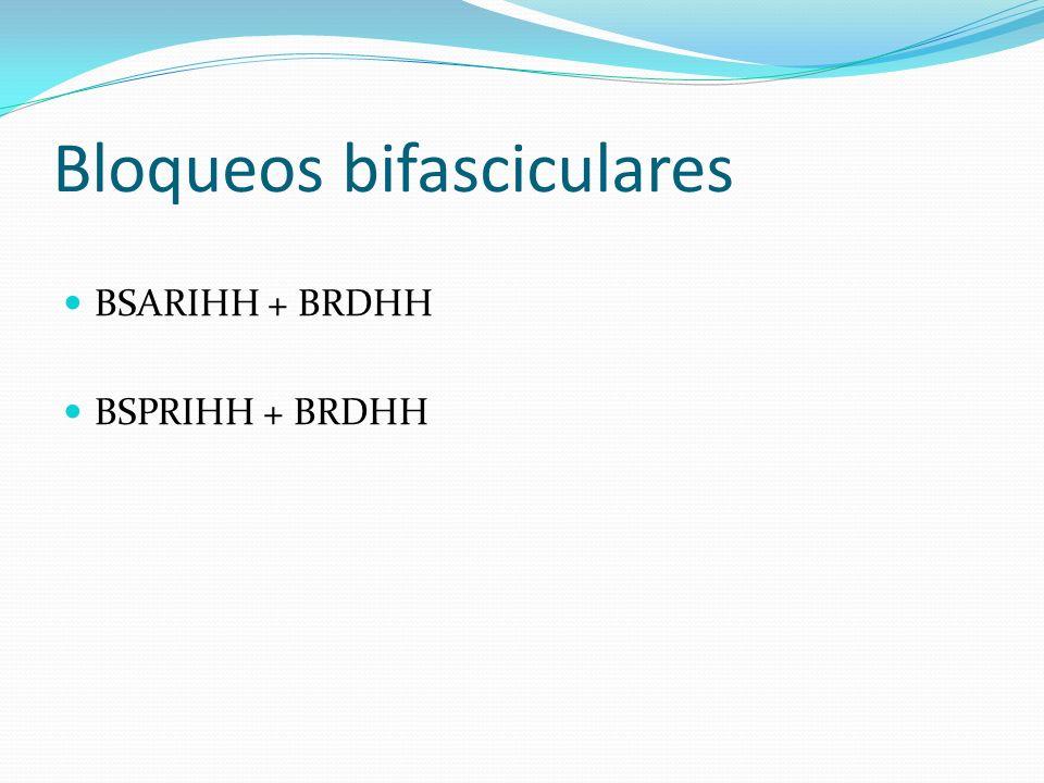 Bloqueos bifasciculares