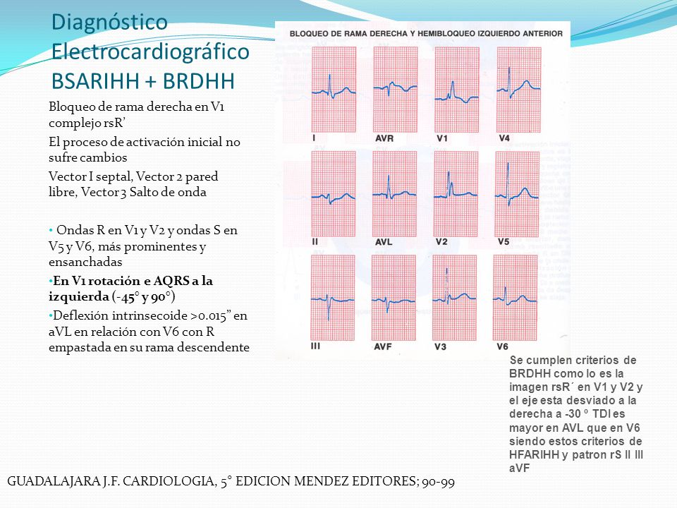 Diagnóstico Electrocardiográfico BSARIHH + BRDHH