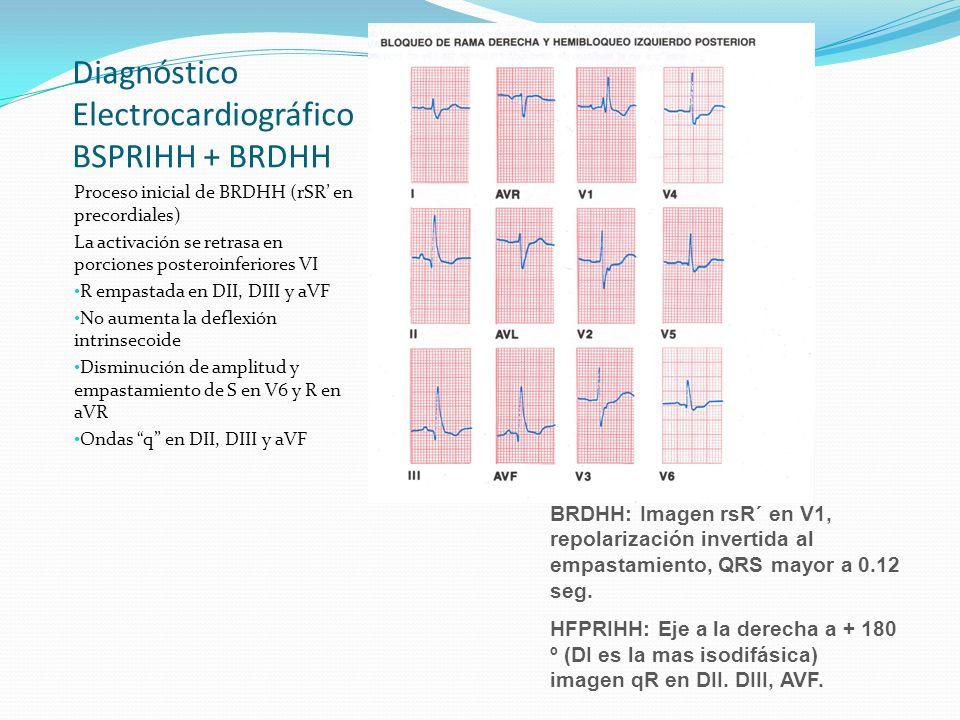 Diagnóstico Electrocardiográfico BSPRIHH + BRDHH