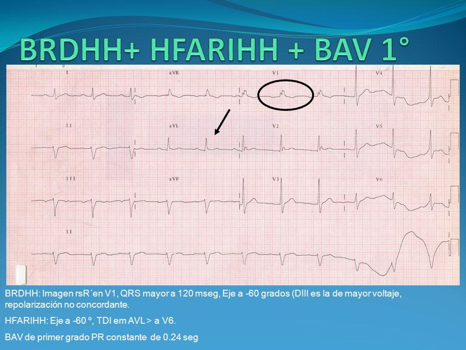 BRDHH+ HFARIHH + BAV 1° BRDHH: Imagen rsR´en V1, QRS mayor a 120 mseg, Eje a -60 grados (DIII es la de mayor voltaje, repolarización no concordante.