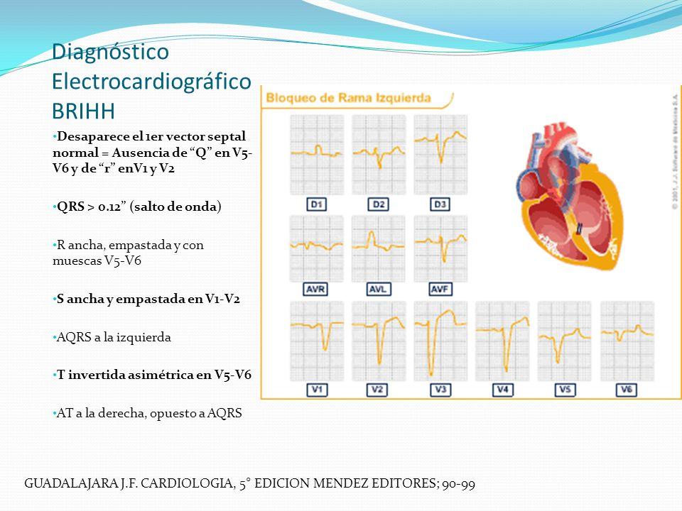 Diagnóstico Electrocardiográfico BRIHH