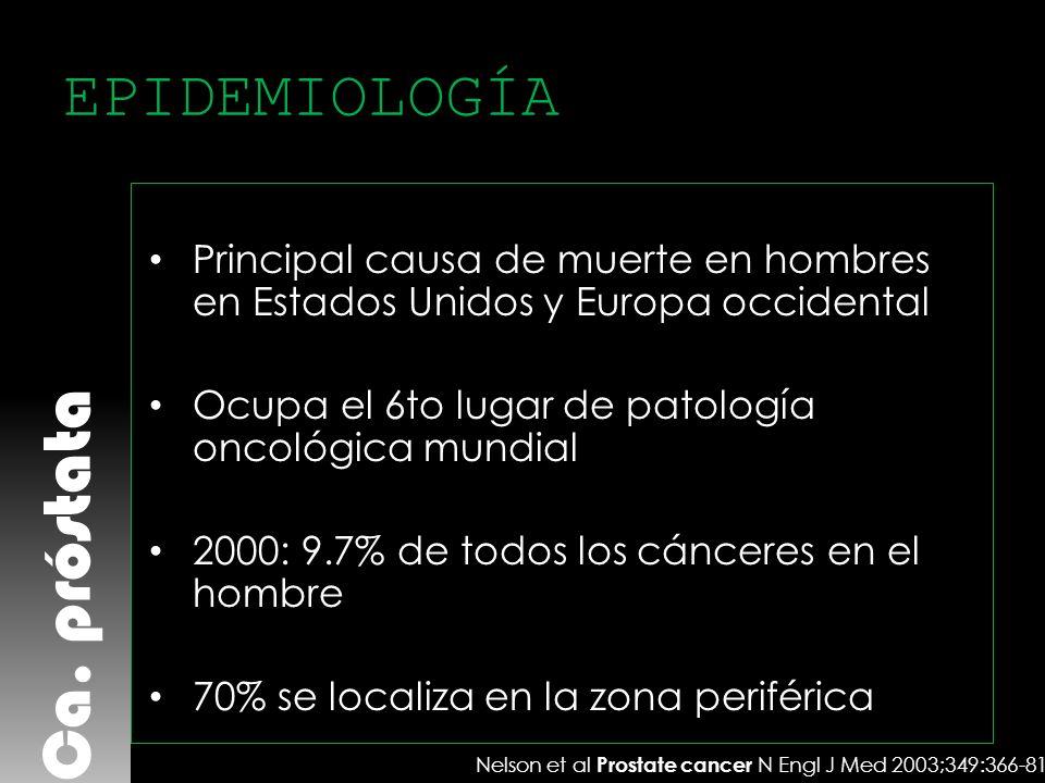 Ca. próstata EPIDEMIOLOGÍA