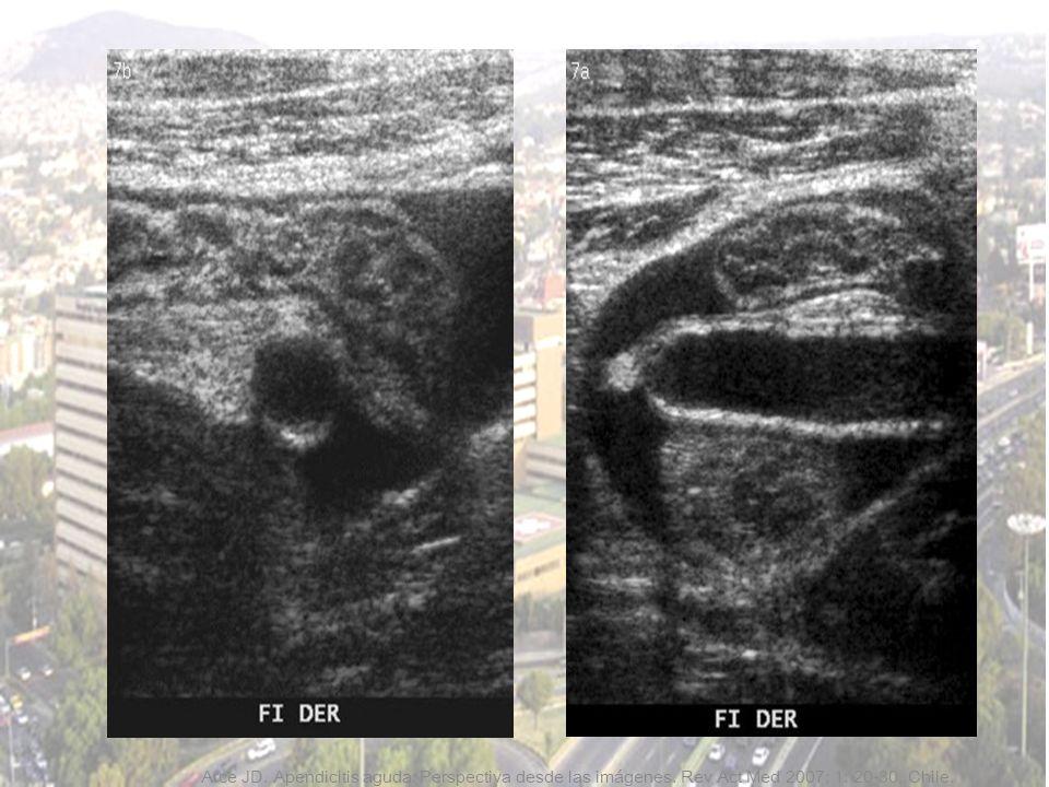 Arce JD. Apendicitis aguda: Perspectiva desde las imágenes