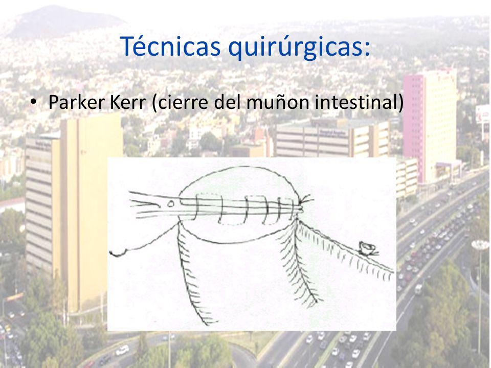 Técnicas quirúrgicas: