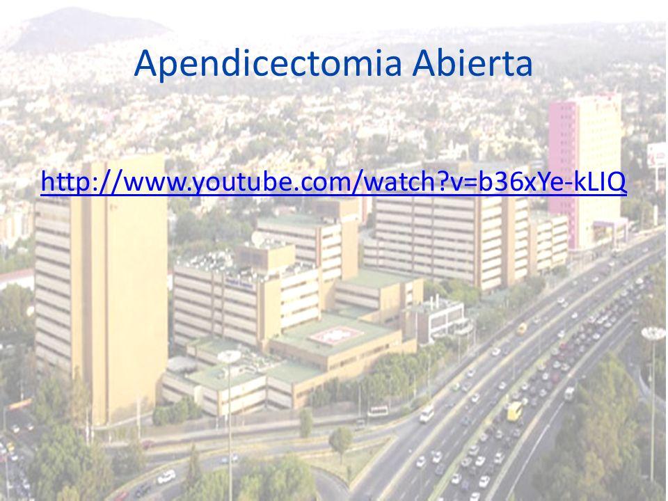 Apendicectomia Abierta