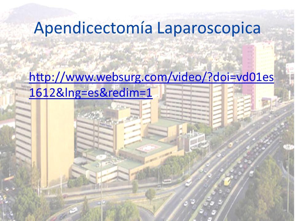 Apendicectomía Laparoscopica