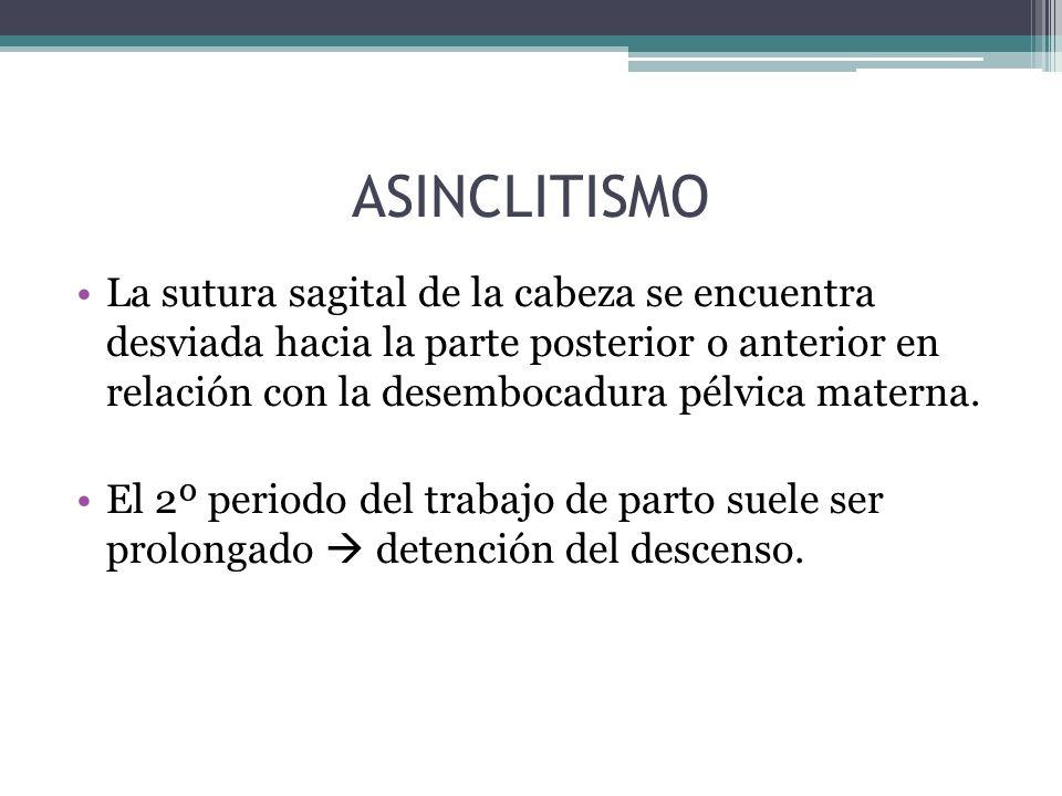 ASINCLITISMO