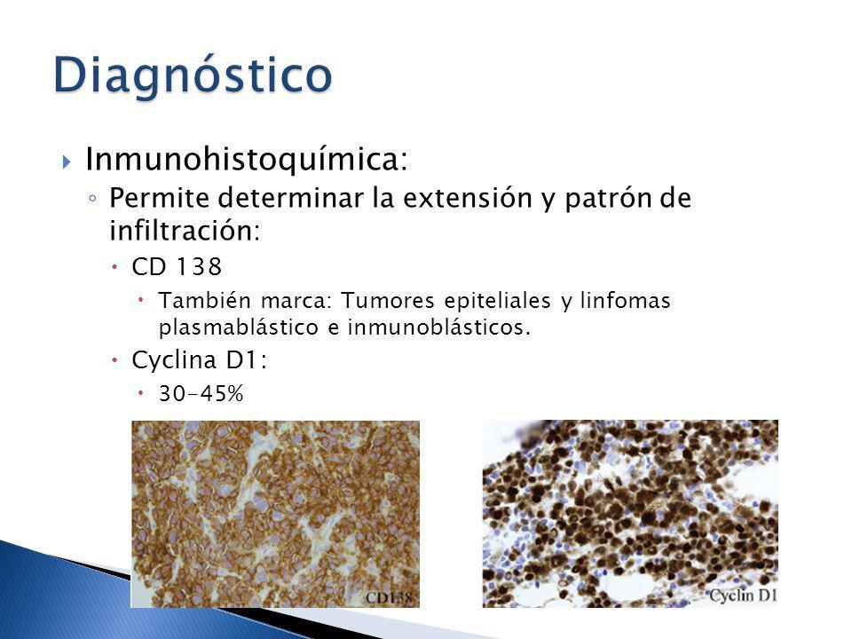 Diagnóstico Inmunohistoquímica: