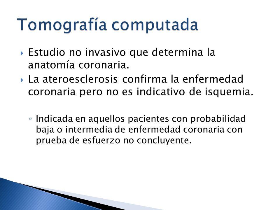 Tomografía computada Estudio no invasivo que determina la anatomía coronaria.
