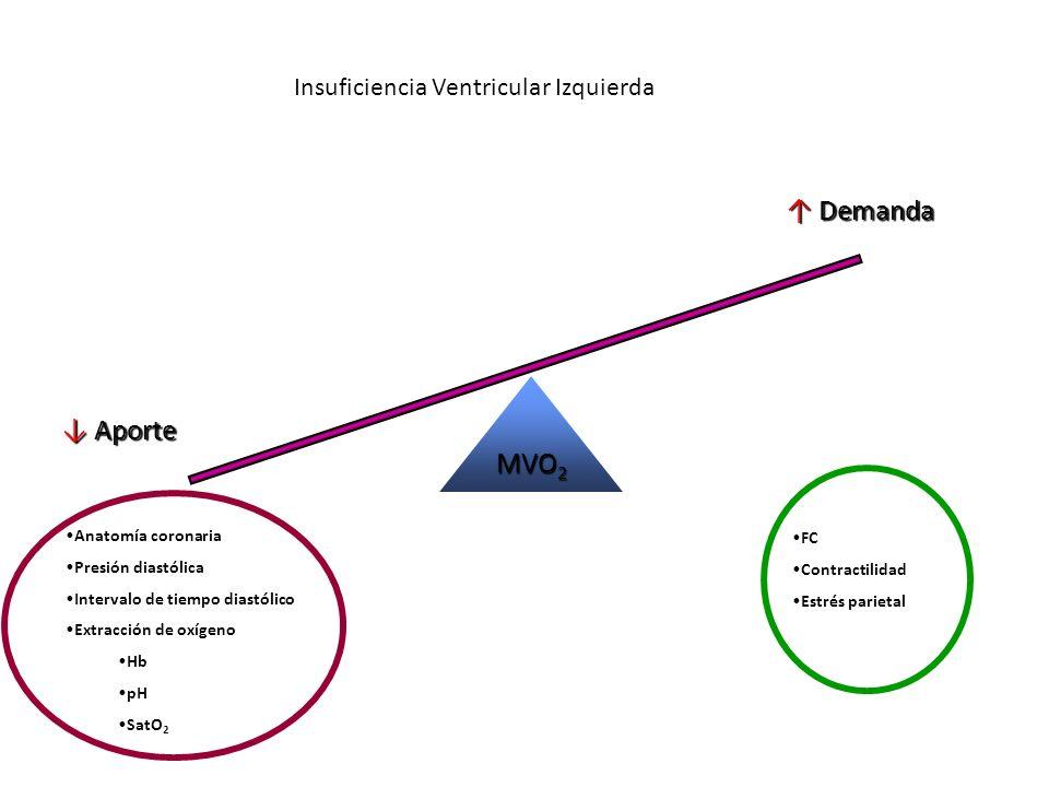 Insuficiencia Ventricular Izquierda