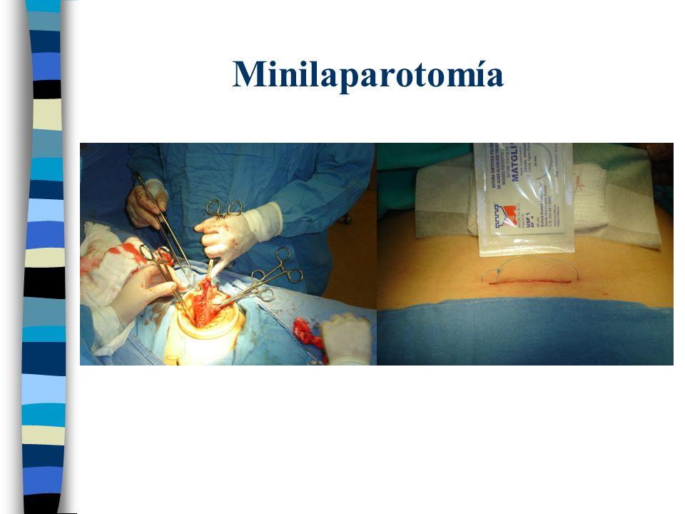 Minilaparotomía
