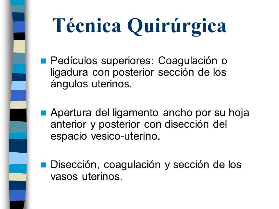 Técnica Quirúrgica Pedículos superiores: Coagulación o ligadura con posterior sección de los ángulos uterinos.