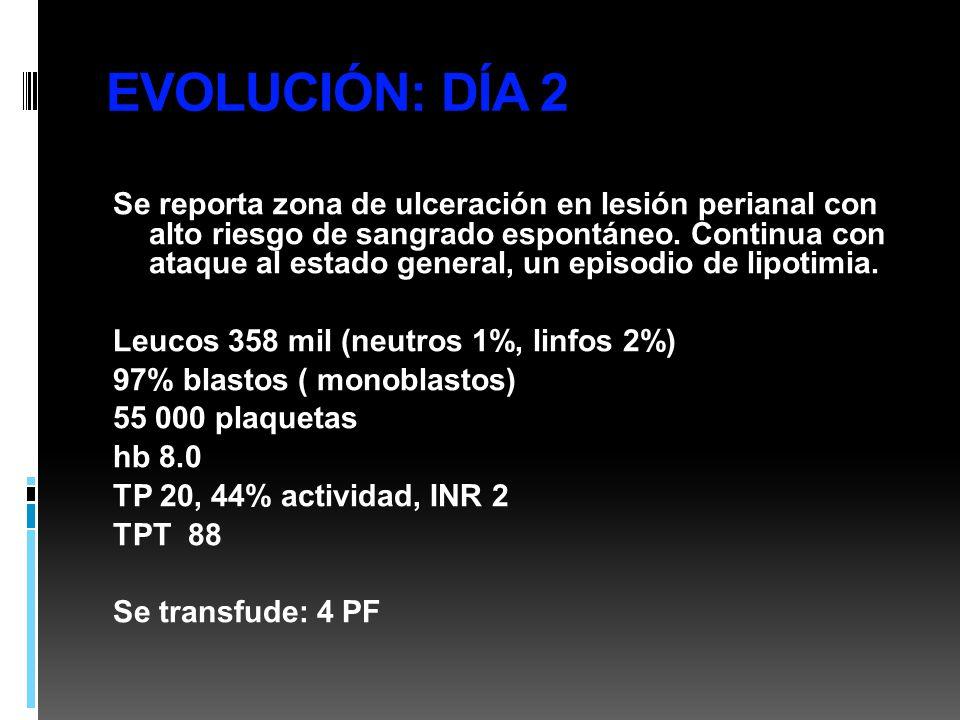 EVOLUCIÓN: DÍA 2