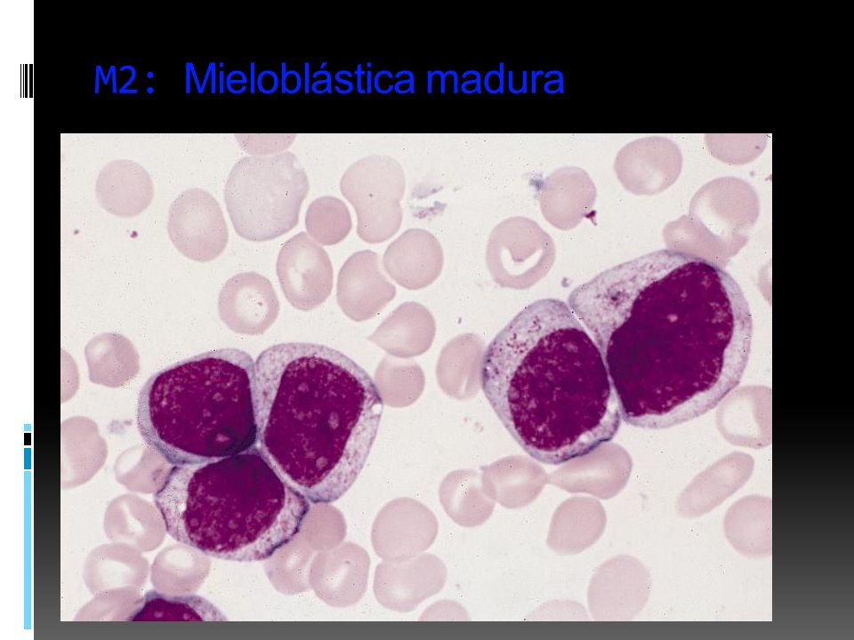 M2: Mieloblástica madura