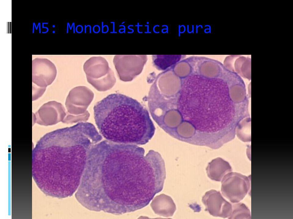 M5: Monoblástica pura