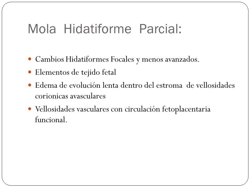 Mola Hidatiforme Parcial: