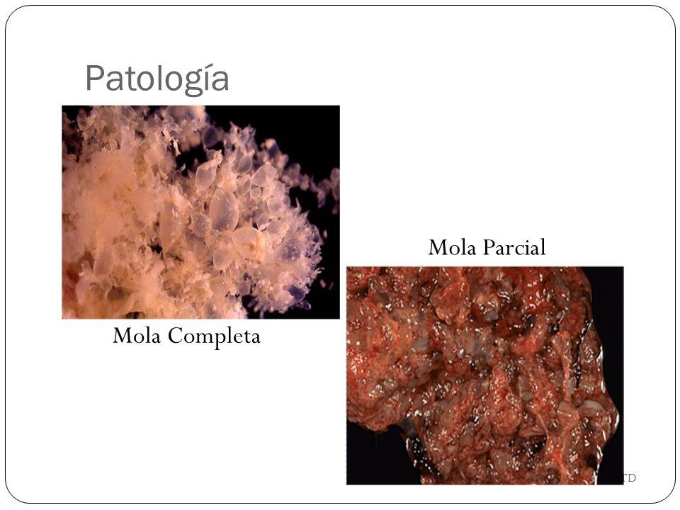 Patología Mola Parcial Mola Completa GTD