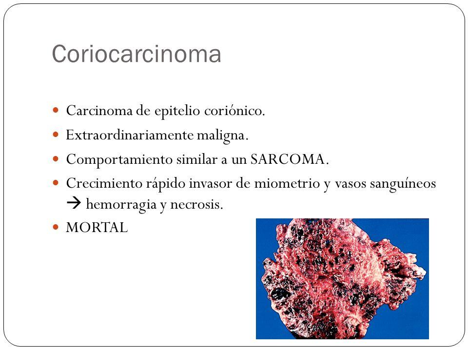 Coriocarcinoma Carcinoma de epitelio coriónico.