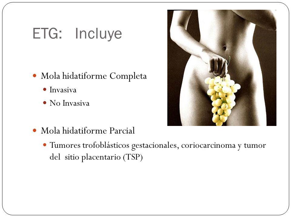 ETG: Incluye Mola hidatiforme Completa Mola hidatiforme Parcial