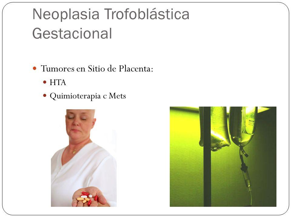 Neoplasia Trofoblástica Gestacional