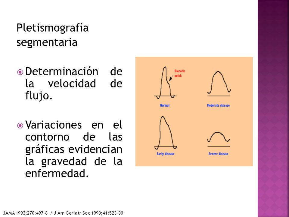Determinación de la velocidad de flujo.