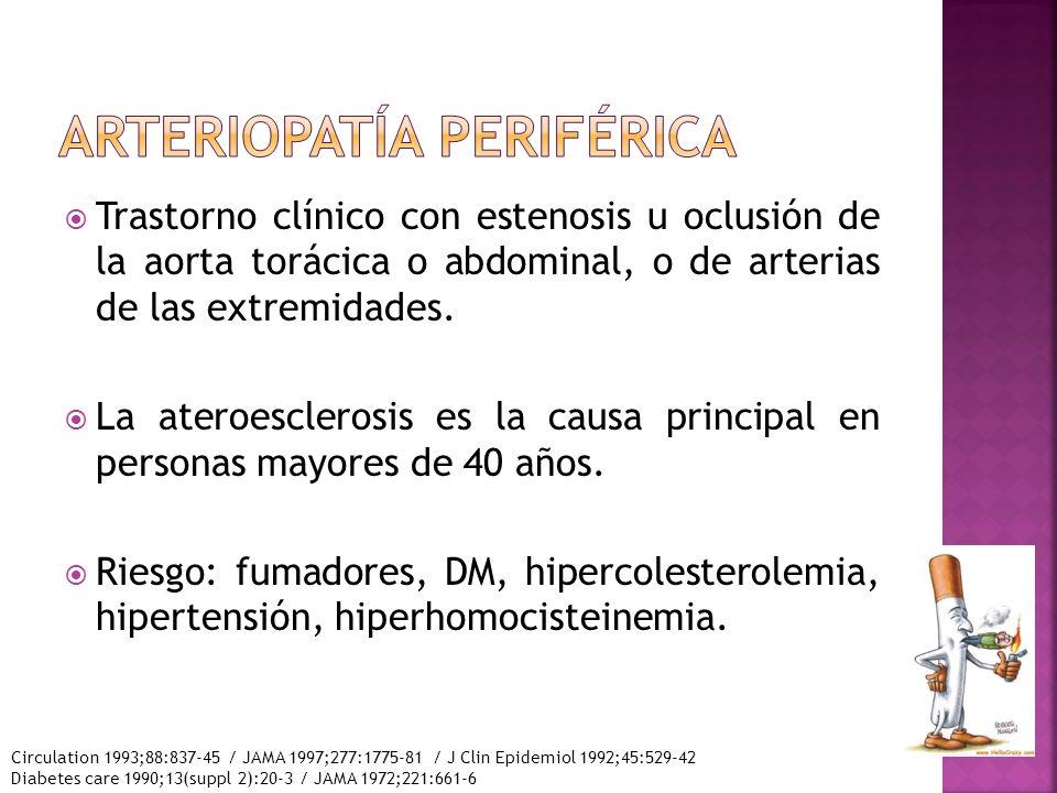 Arteriopatía periférica