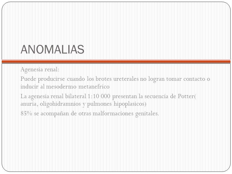 ANOMALIAS Agenesia renal: