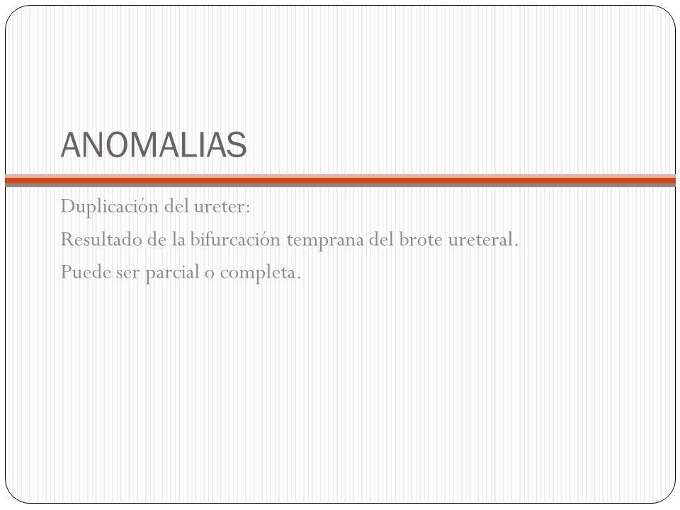 ANOMALIAS Duplicación del ureter: