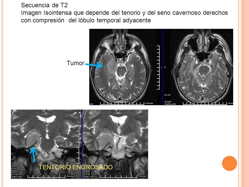 Secuencia de T2 Imagen Isointensa que depende del tenorio y del seno cavernoso derechos con compresión del lóbulo temporal adyacente.