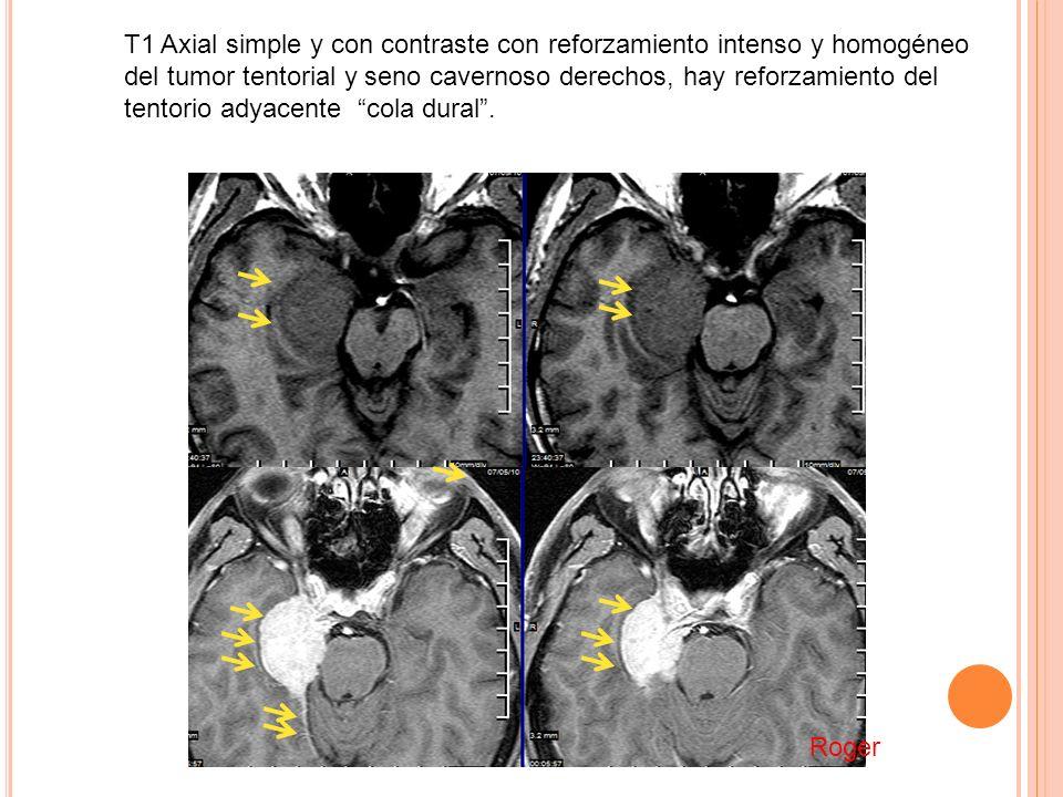 T1 Axial simple y con contraste con reforzamiento intenso y homogéneo del tumor tentorial y seno cavernoso derechos, hay reforzamiento del tentorio adyacente cola dural .