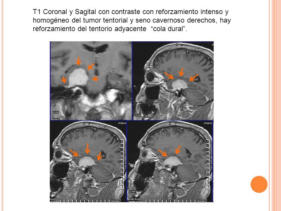 T1 Coronal y Sagital con contraste con reforzamiento intenso y homogéneo del tumor tentorial y seno cavernoso derechos, hay reforzamiento del tentorio adyacente cola dural .