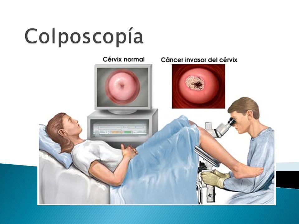 Colposcopía