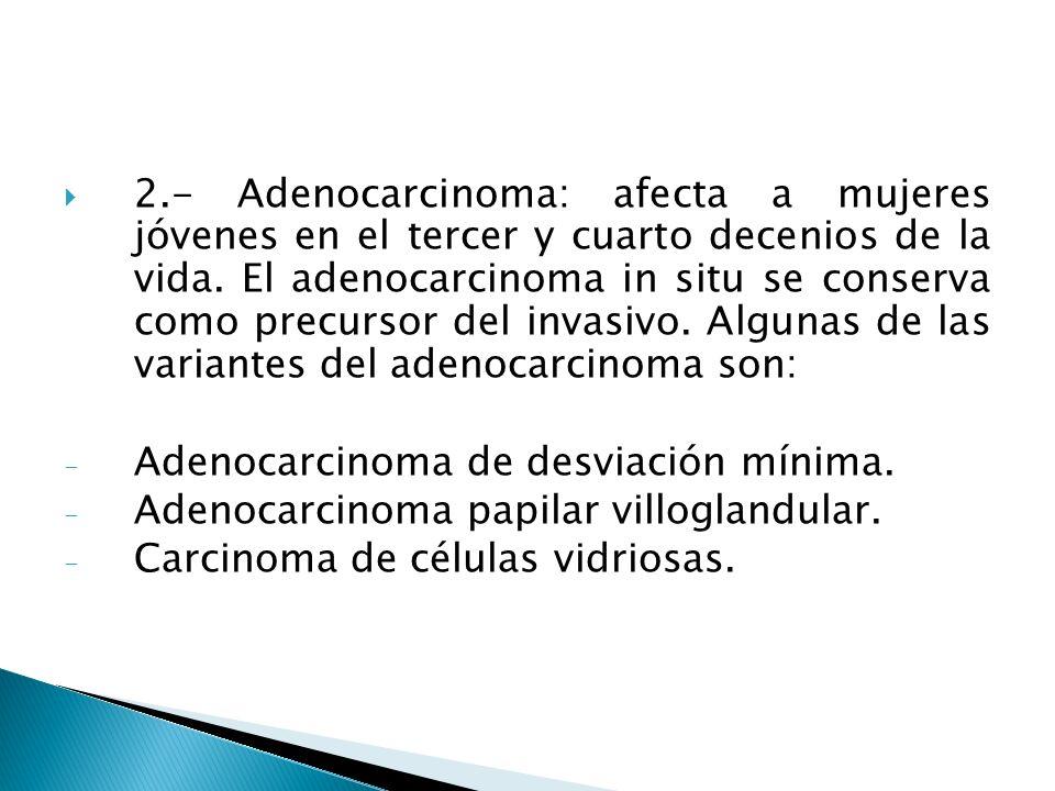 2.- Adenocarcinoma: afecta a mujeres jóvenes en el tercer y cuarto decenios de la vida. El adenocarcinoma in situ se conserva como precursor del invasivo. Algunas de las variantes del adenocarcinoma son: