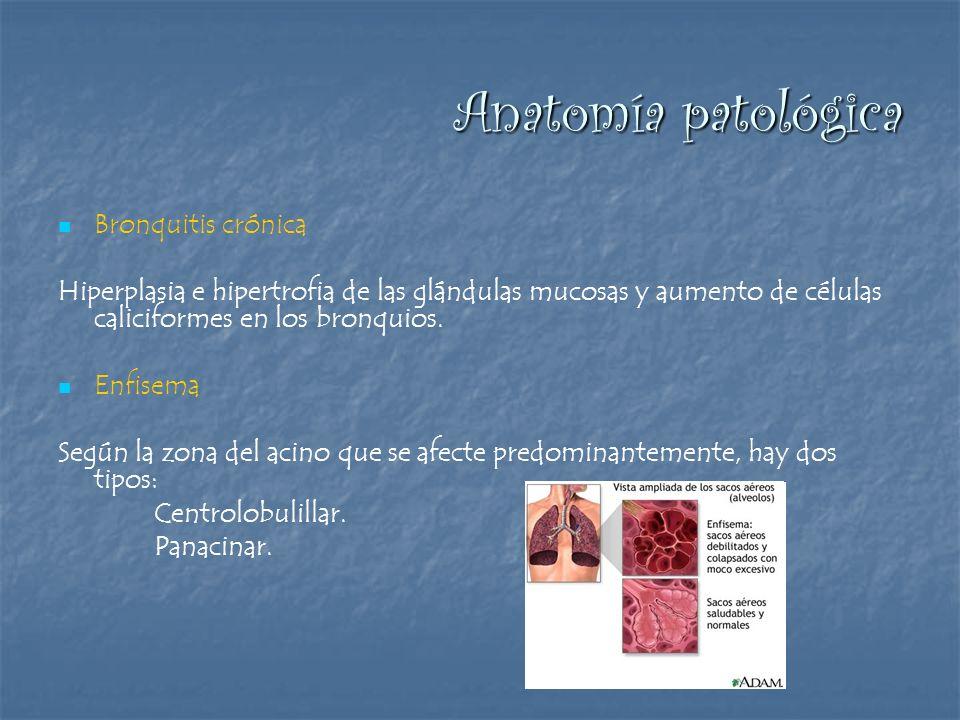 Anatomía patológica Bronquitis crónica