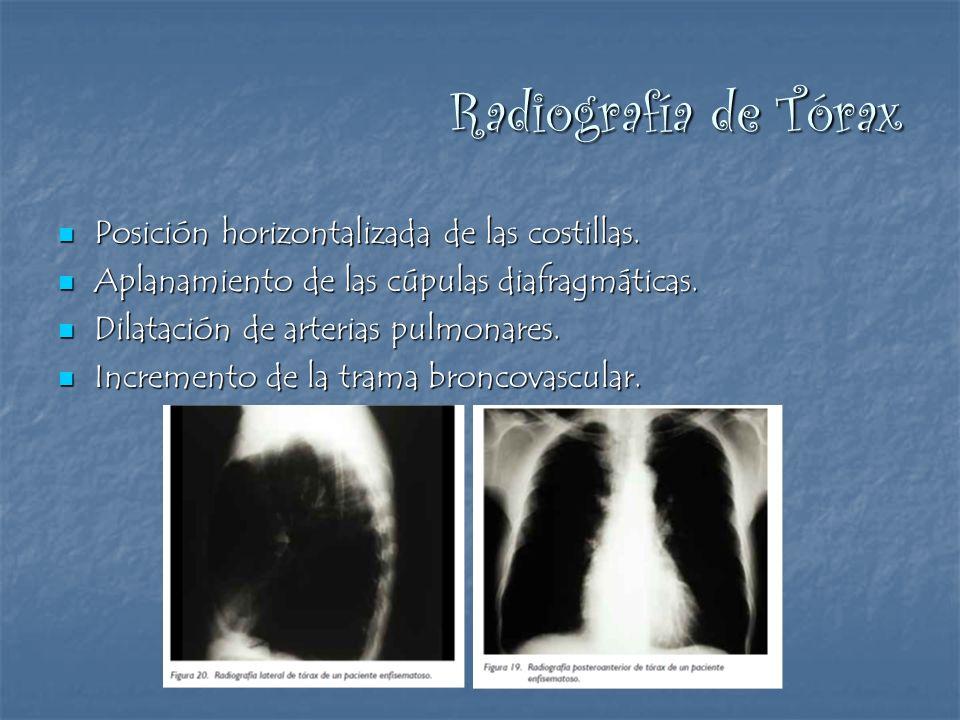 Radiografía de Tórax Posición horizontalizada de las costillas.