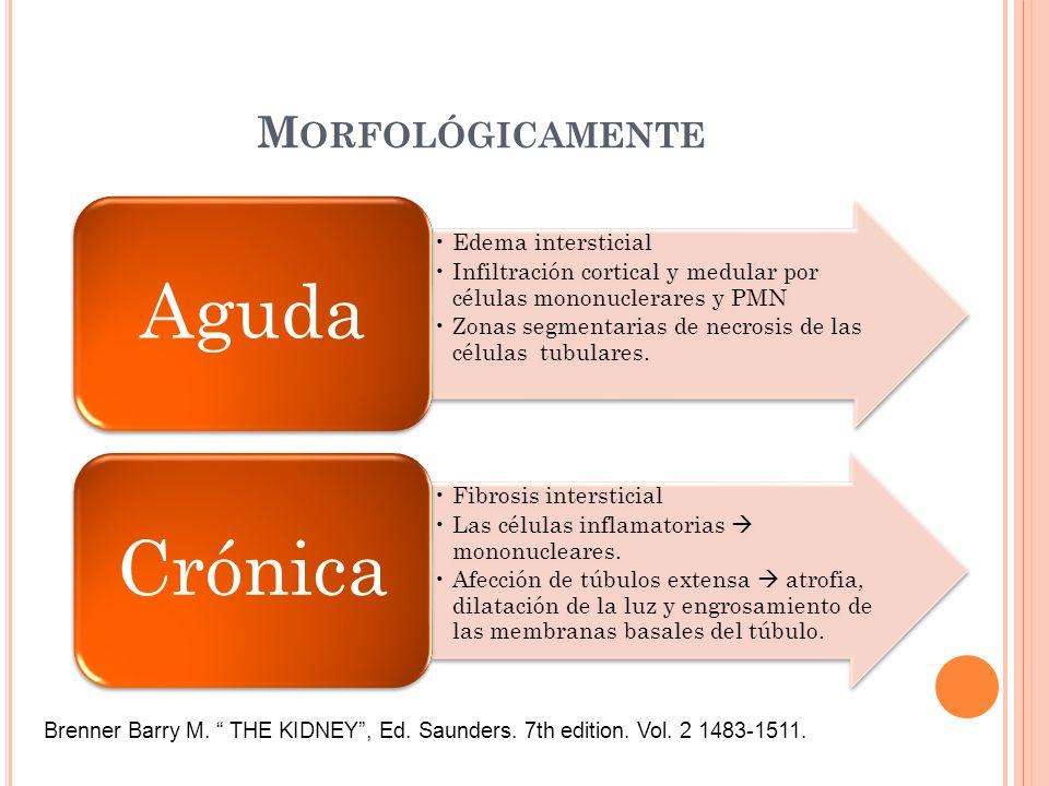 Morfológicamente Aguda. Edema intersticial. Infiltración cortical y medular por células mononuclerares y PMN.