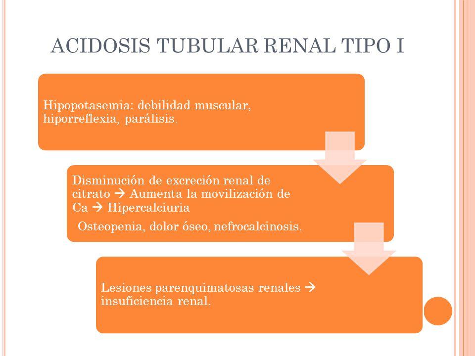 ACIDOSIS TUBULAR RENAL TIPO I